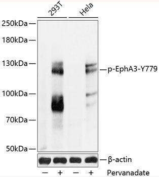 Cell Biology Antibodies 16 Anti-Phospho-EphA3-Y779 pAb Antibody CABP0768