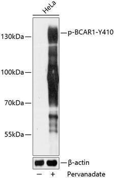 Cell Biology Antibodies 16 Anti-Phospho-BCAR1-Y410 pAb Antibody CABP0789