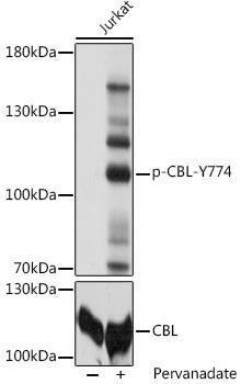 Signal Transduction Antibodies 3 Anti-Phospho-CBL-Y774 pAb Antibody CABP0794