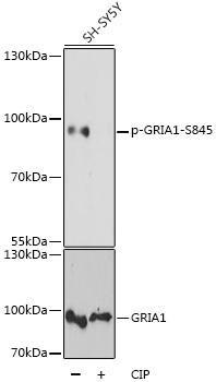 Signal Transduction Antibodies 3 Anti-Phospho-GRIA1-S845 pAb Antibody CABP0825