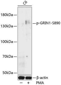 Signal Transduction Antibodies 3 Anti-Phospho-GRIN1-S890 pAb Antibody CABP0826