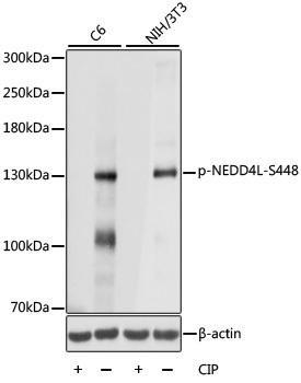 Developmental Biology Anti-Phospho-NEDD4L-S448 pAb Antibody CABP0843