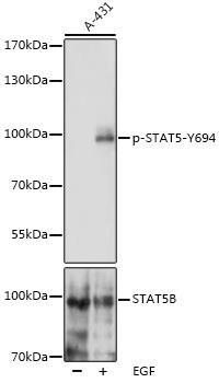 Cell Biology Antibodies 16 Anti-Phospho-STAT5-Y694 pAb Antibody CABP0887