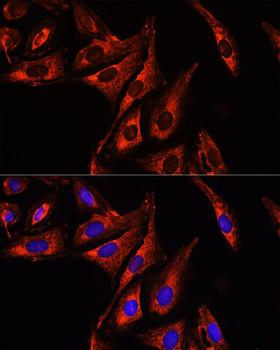 Secondary Antibodies Anti-Cy3 Goat Anti-Mouse IgG HL Antibody CABS008