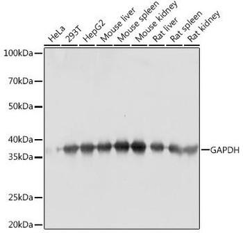 Cell Death Antibodies 2 Anti-GAPDH Antibody CABC001
