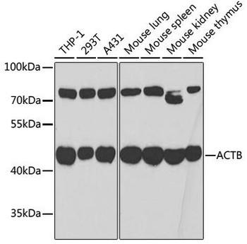 Loading Controls Anti-Beta Actin Antibody CABC006