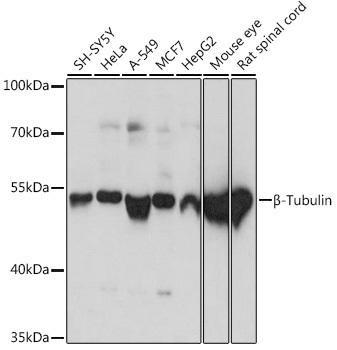 Cell Biology Antibodies 16 Anti-Beta-Tubulin Antibody CABC015
