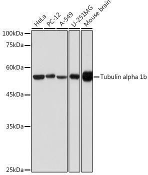 Loading Controls Anti-Tubulin alpha 1b Antibody CABC024