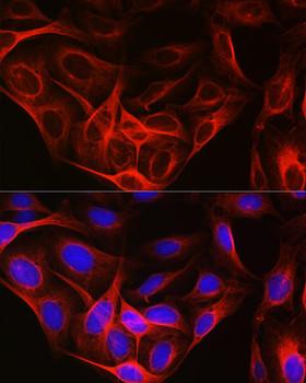 Loading Controls Anti-Tubulin alpha 1b Antibody CABC025
