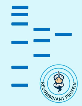 Recombinant Human TAOK3/JIK/MAP3K18 Protein aa 1-411, His and GST TagActive RPES1267