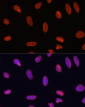 Secondary Antibodies Anti-Alexa Fluor 594-conjugated AffiniPure Goat Anti-Rabbit IgG HL Antibody CABS074