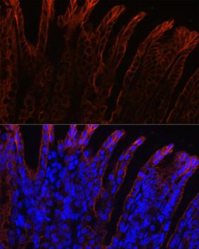 Secondary Antibodies Anti-Alexa Fluor 594-conjugated AffiniPure Goat Anti-Mouse IgG HL Antibody CABS077
