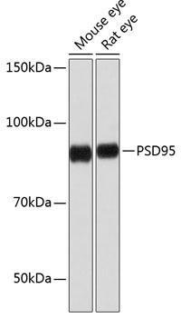 Cell Biology Antibodies 16 Anti-PSD95 Antibody CAB0131