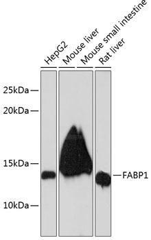 Signal Transduction Antibodies 3 Anti-FABP1 Antibody CAB11213