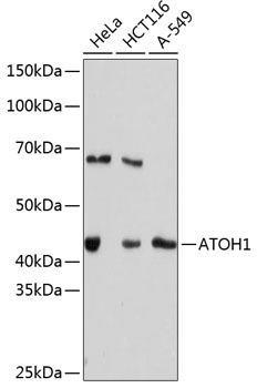 Developmental Biology Anti-ATOH1 Antibody CAB11477