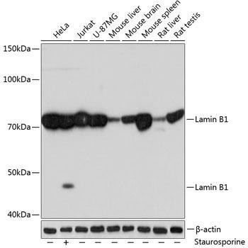 Cell Biology Antibodies 16 Anti-Lamin B1 Antibody CAB11495