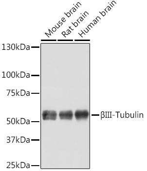 Cell Biology Antibodies 16 Anti-BetaIII-Tubulin Antibody CAB11933
