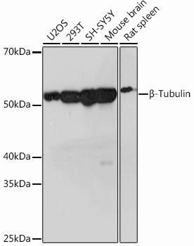 Cell Biology Antibodies 15 Anti-Beta-Tubulin Antibody CAB12289