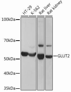 Signal Transduction Antibodies 3 Anti-GLUT2 Antibody CAB12307