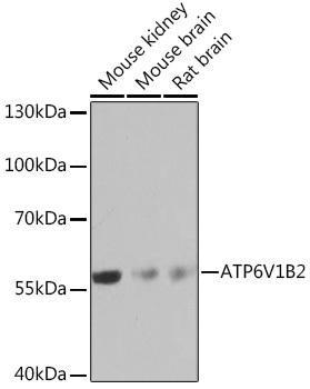 Signal Transduction Antibodies 3 Anti-ATP6V1B2 Antibody CAB16771