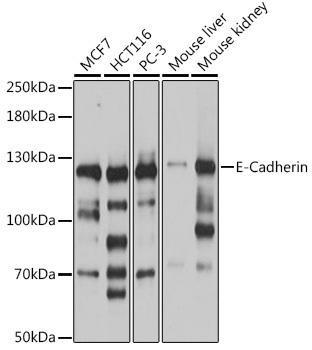 Cell Biology Antibodies 14 Anti-E-Cadherin Antibody CAB16811