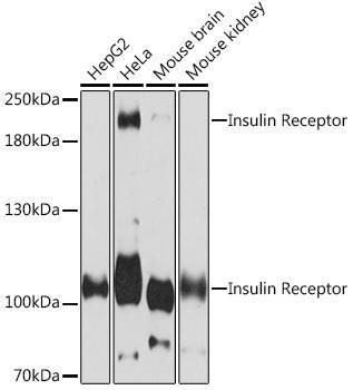 Metabolism Antibodies 3 Anti-Insulin Receptor Antibody CAB16900