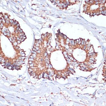Signal Transduction Antibodies 3 Anti-UBE2O Antibody CAB17201