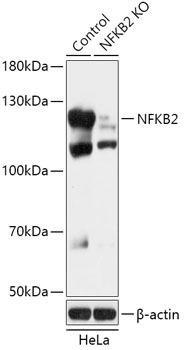 KO Validated Antibodies 1 Anti-NF-kB2 Antibody CAB18062KO Validated