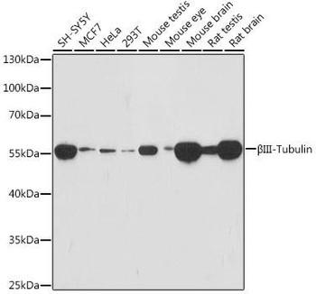 Cell Biology Antibodies 15 Anti-BetaIII-Tubulin Mouse Monoclonal Antibody CAB18132