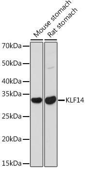 Cell Biology Antibodies 15 Anti-KLF14 Antibody CAB18607