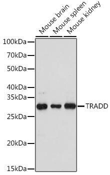 Cell Biology Antibodies 17 Anti-TRADD Antibody CAB18626