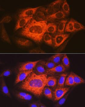 Cell Biology Antibodies 15 Anti-TACC3 Antibody CAB18641