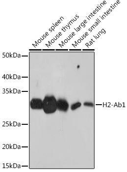 Cell Biology Antibodies 15 Anti-H2-Ab1 Antibody CAB18658