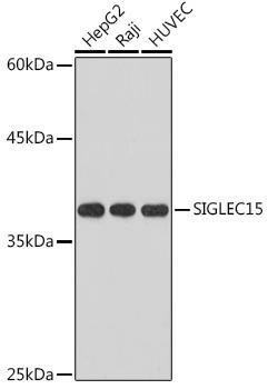 Cell Biology Antibodies 15 Anti-SIGLEC15 Antibody CAB18660