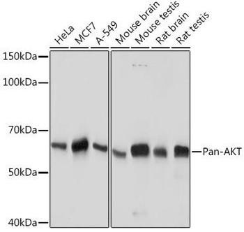 Cell Biology Antibodies 17 Anti-Pan-AKT Antibody CAB18675