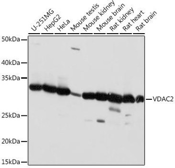 Cell Biology Antibodies 15 Anti-VDAC2 Antibody CAB18683