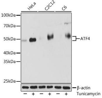 Cell Biology Antibodies 17 Anti-ATF4 Antibody CAB18687