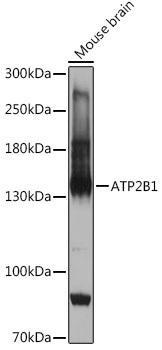 Cell Biology Antibodies 15 Anti-ATP2B1 Antibody CAB18688