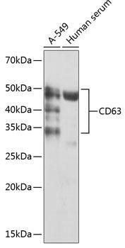 Cell Biology Antibodies 17 Anti-CD63 Antibody CAB19023