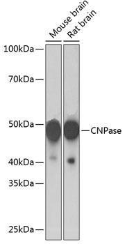 Cell Biology Antibodies 17 Anti-CNPase Antibody CAB19033