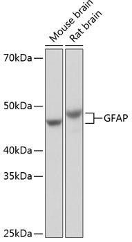 Cell Biology Antibodies 17 Anti-GFAP Antibody CAB19058