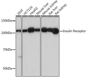 Metabolism Antibodies 3 Anti-Insulin Receptor Antibody CAB19067
