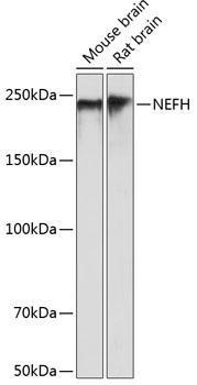 Cell Biology Antibodies 17 Anti-NEFH Antibody CAB19084