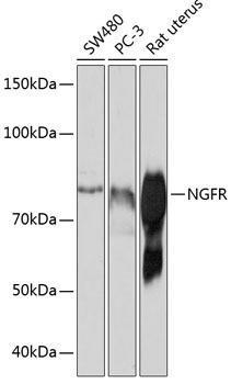 Cell Death Antibodies 2 Anti-NGFR Antibody CAB19088
