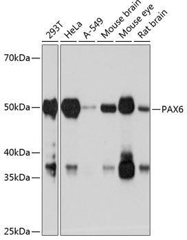 Developmental Biology Anti-PAX6 Antibody CAB19099