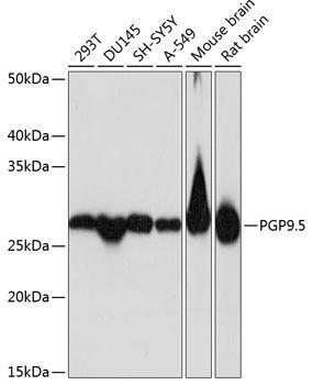 Signal Transduction Antibodies 3 Anti-PGP9.5 Antibody CAB19101