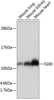 Cell Biology Antibodies 15 Anti-S100 Antibody CAB19107