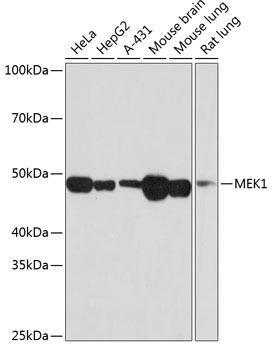 Cell Biology Antibodies 17 Anti-MEK1 Antibody CAB19565