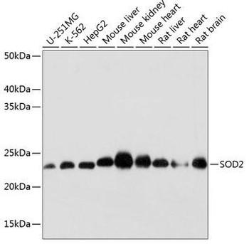 Cell Biology Antibodies 17 Anti-SOD2 Antibody CAB19576