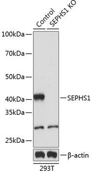 KO Validated Antibodies 2 Anti-SEPHS1 Antibody CAB19919KO Validated